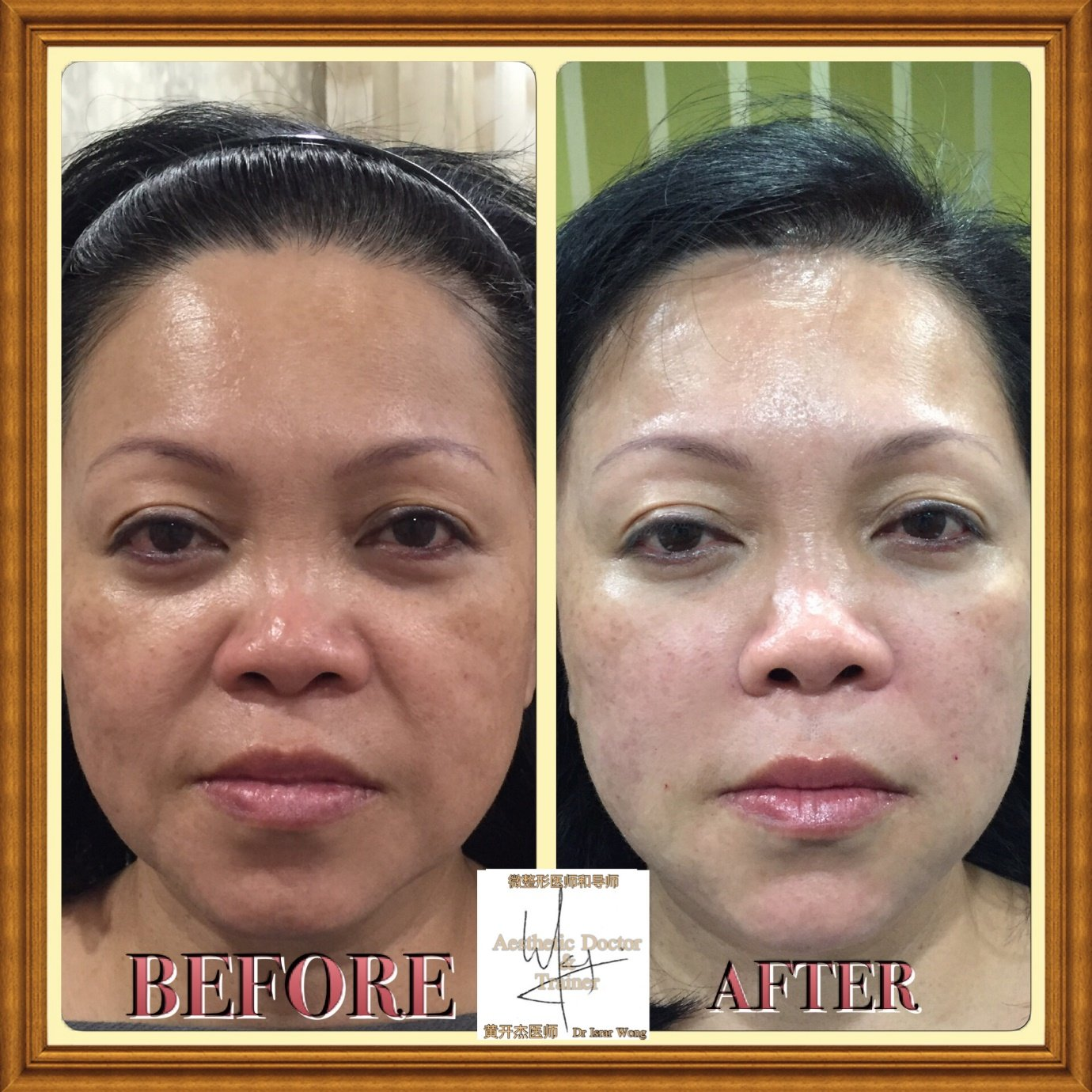 Dermal Fillers in Singapore: A 2017 Review - Doctor Israr Wong