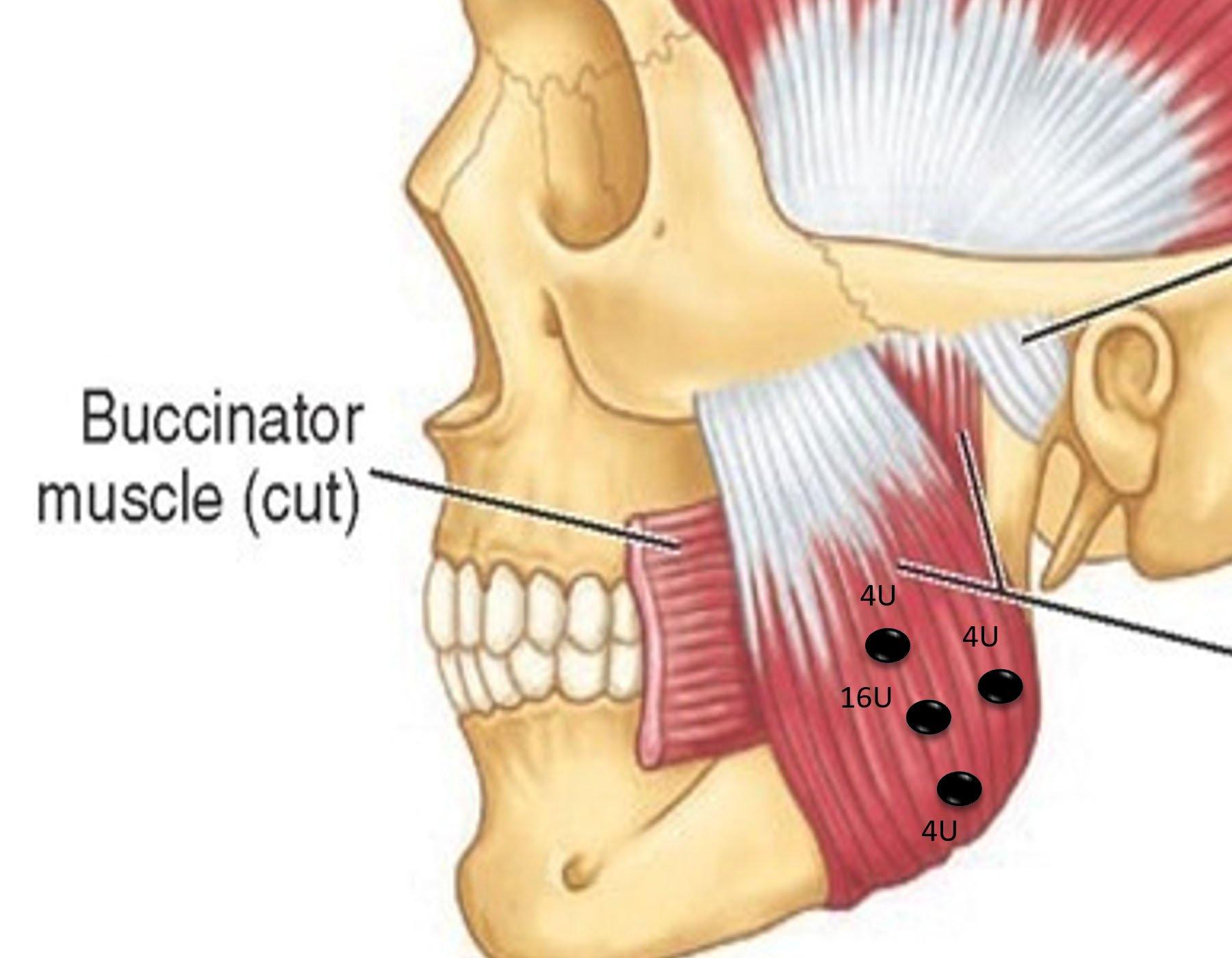buccinator muscle cut
