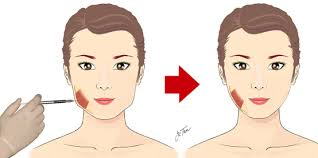 jaw botox operation in images