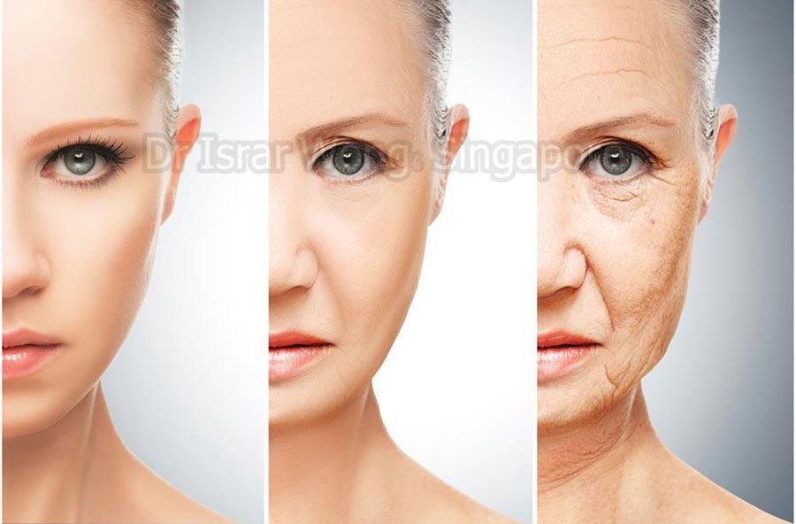 Signs of facial aging