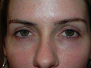 Eye Bag Removal Surgery & Dark Circle Treatment in Singapore