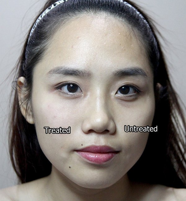 dark eye circles treated and untreated