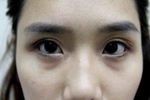 fake eyebags