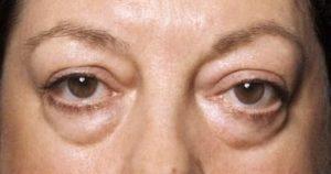 real eyebags