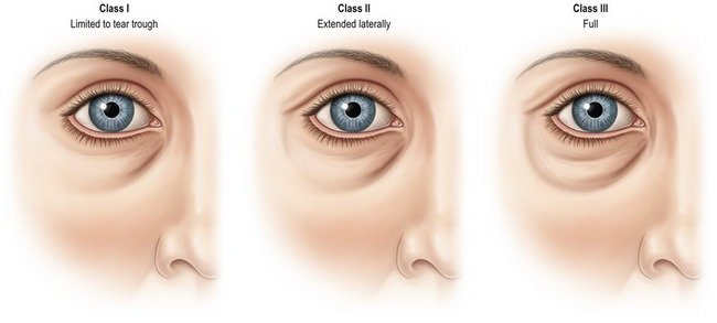 Classification of the Tear Trough Deficiency
