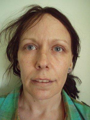 Sunken cheeks give an aged look