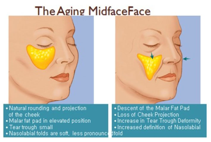 aging midface