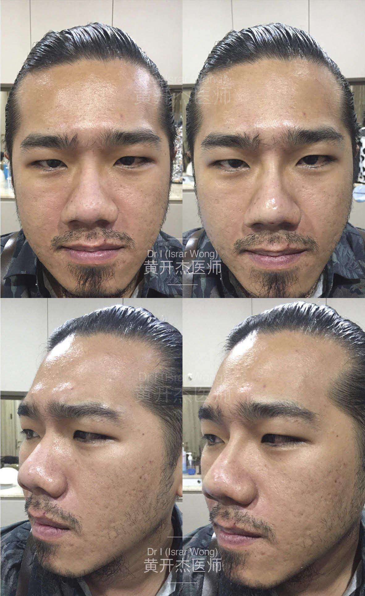 Nose Augmentation in Men