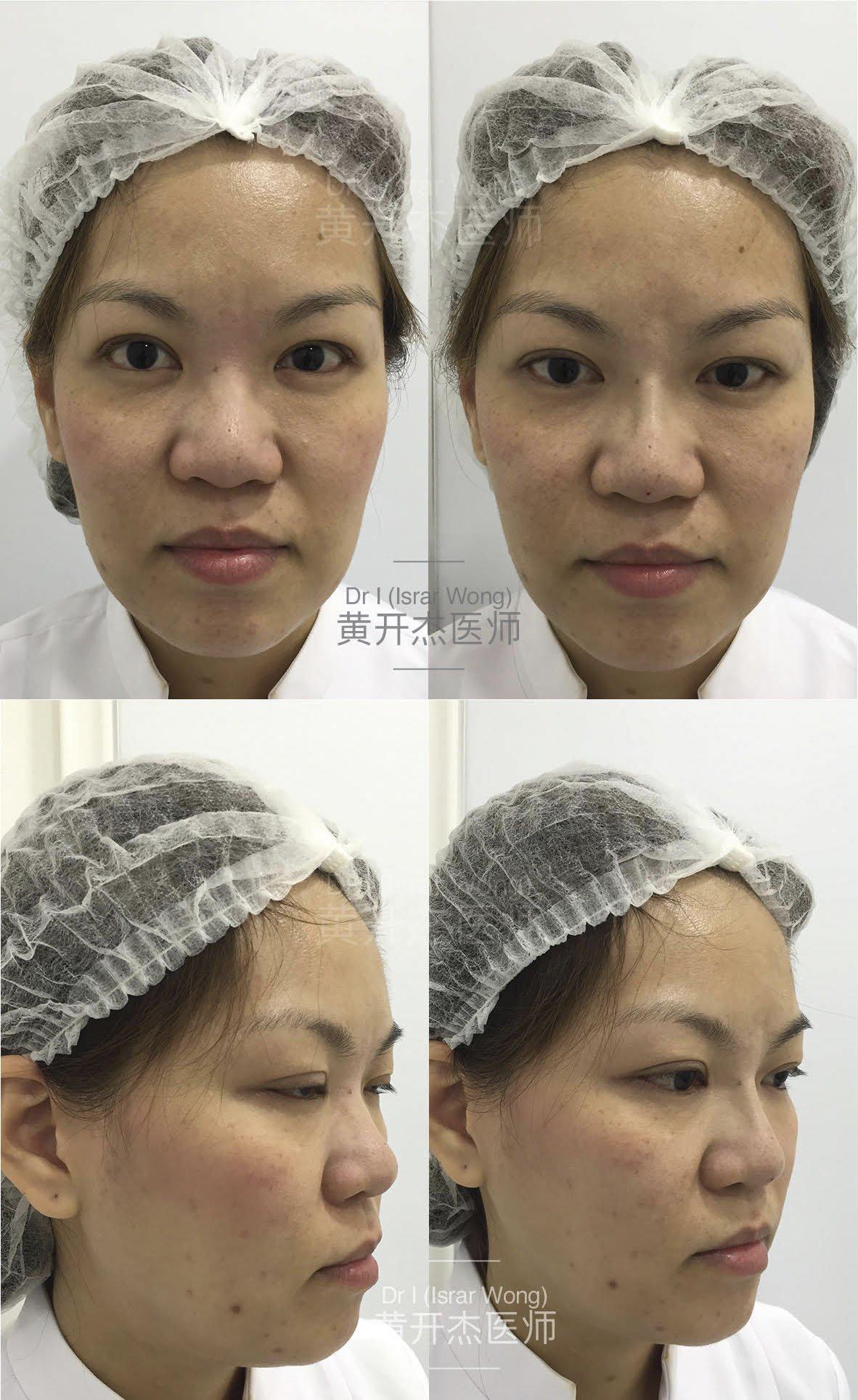Nose Augmentation in Women
