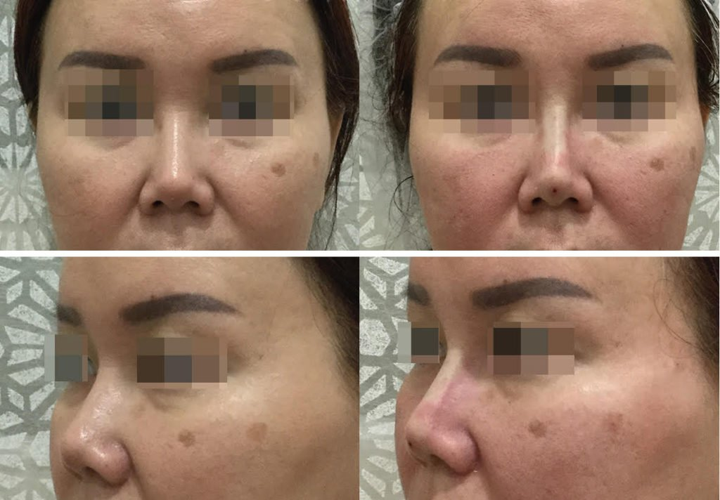 Thread Lift Nose Related Keywords & Suggestions - Thread Lift Nose