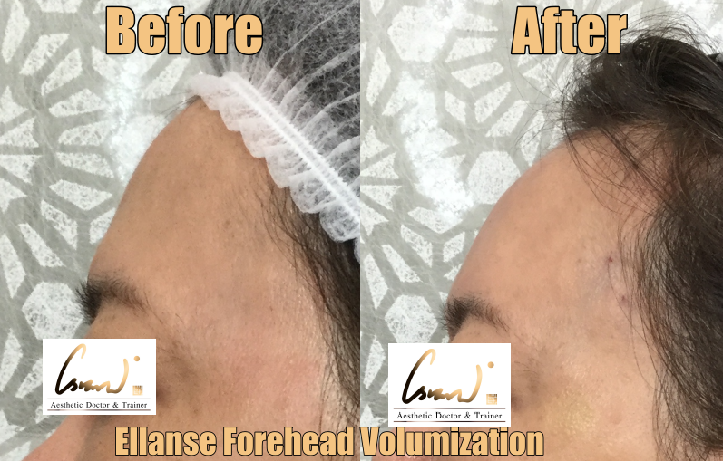 before after ellanse volumization