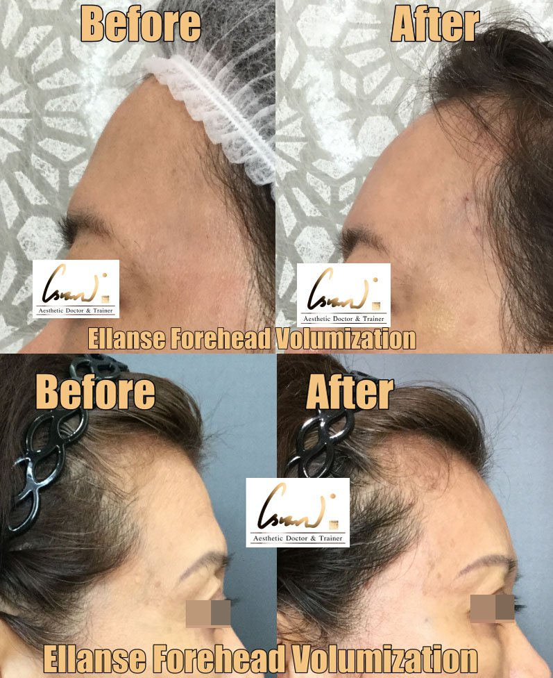 ellanse forehead volumization