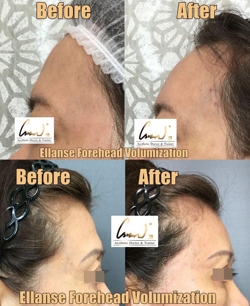 ellanse forehead volumization