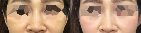avatar nose fix israr wong
