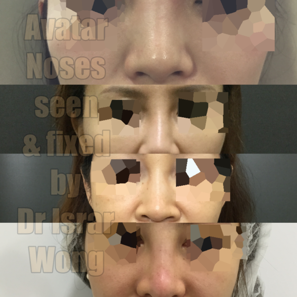 noses fixed by israr wong
