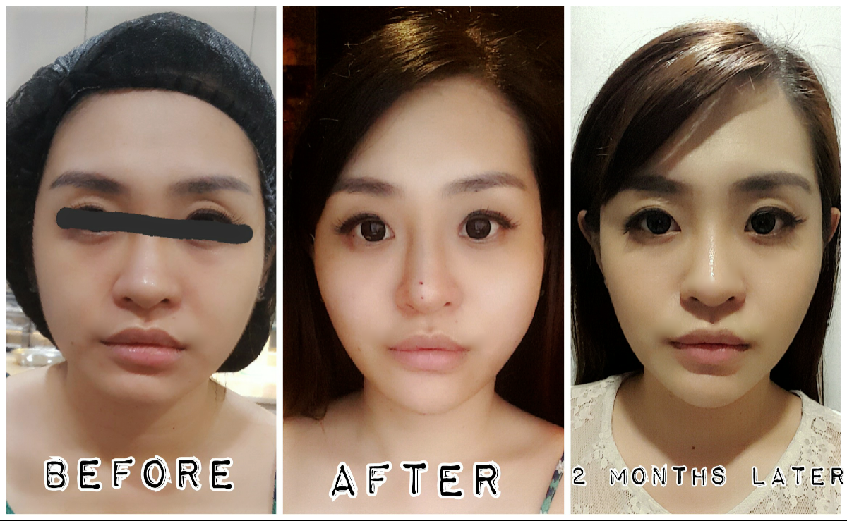 Korean Threadlift