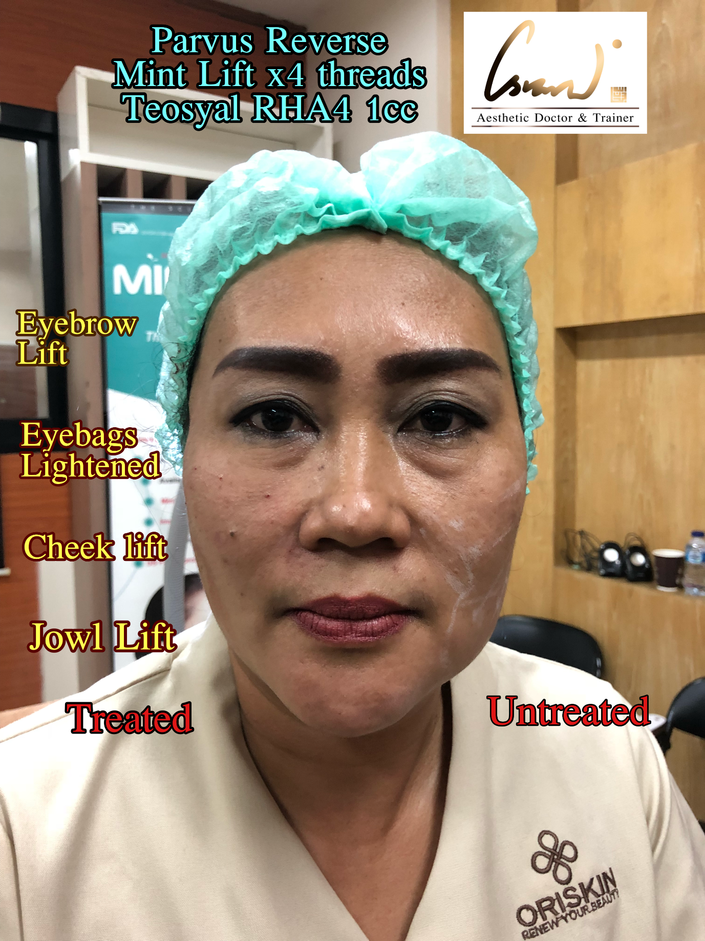 Mint Lift + Teosyal results