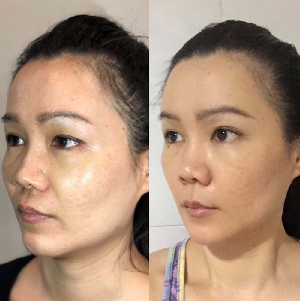 combination threadlift filler result