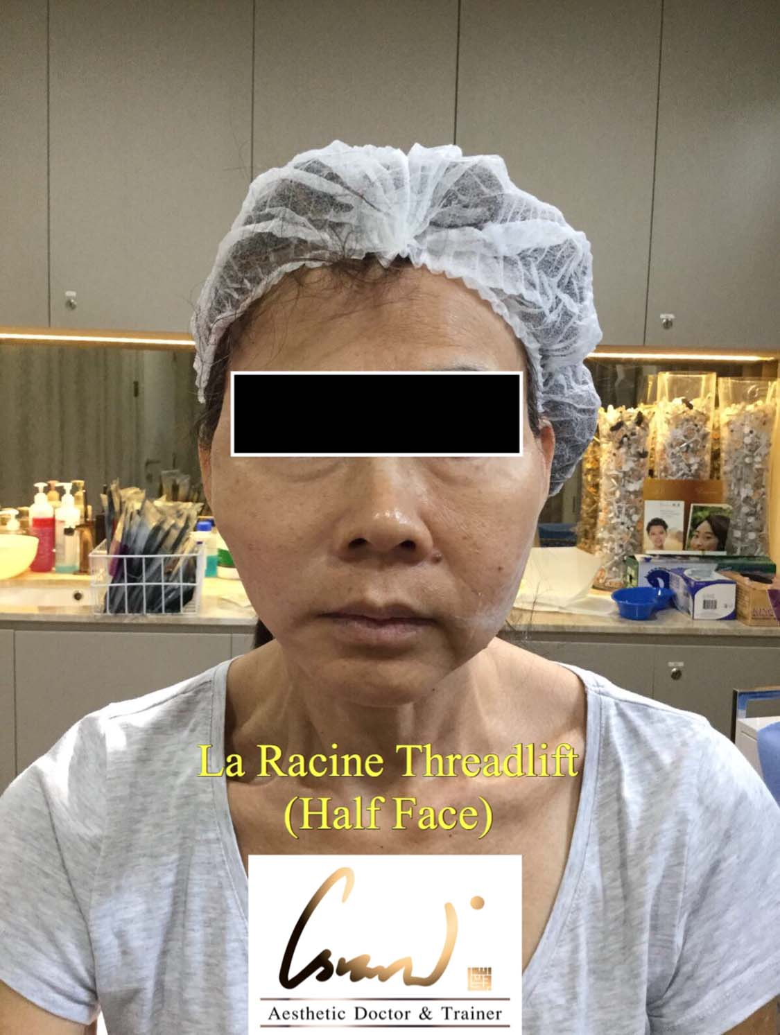 la racine threadlift