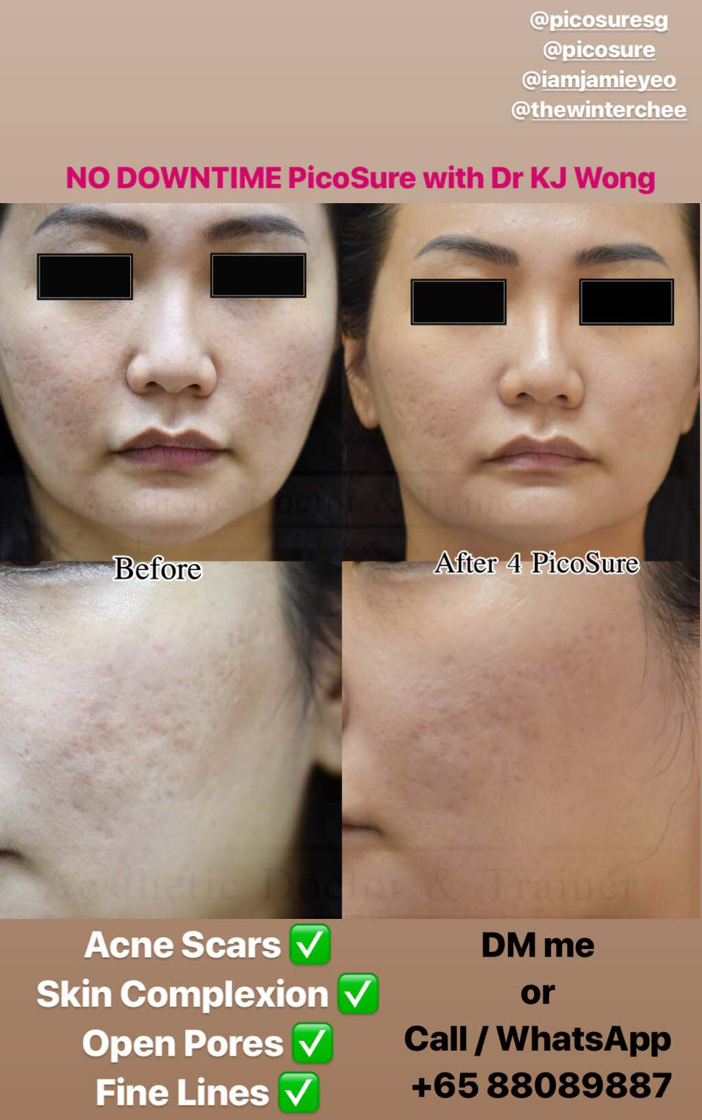 PicoSure Laser Results