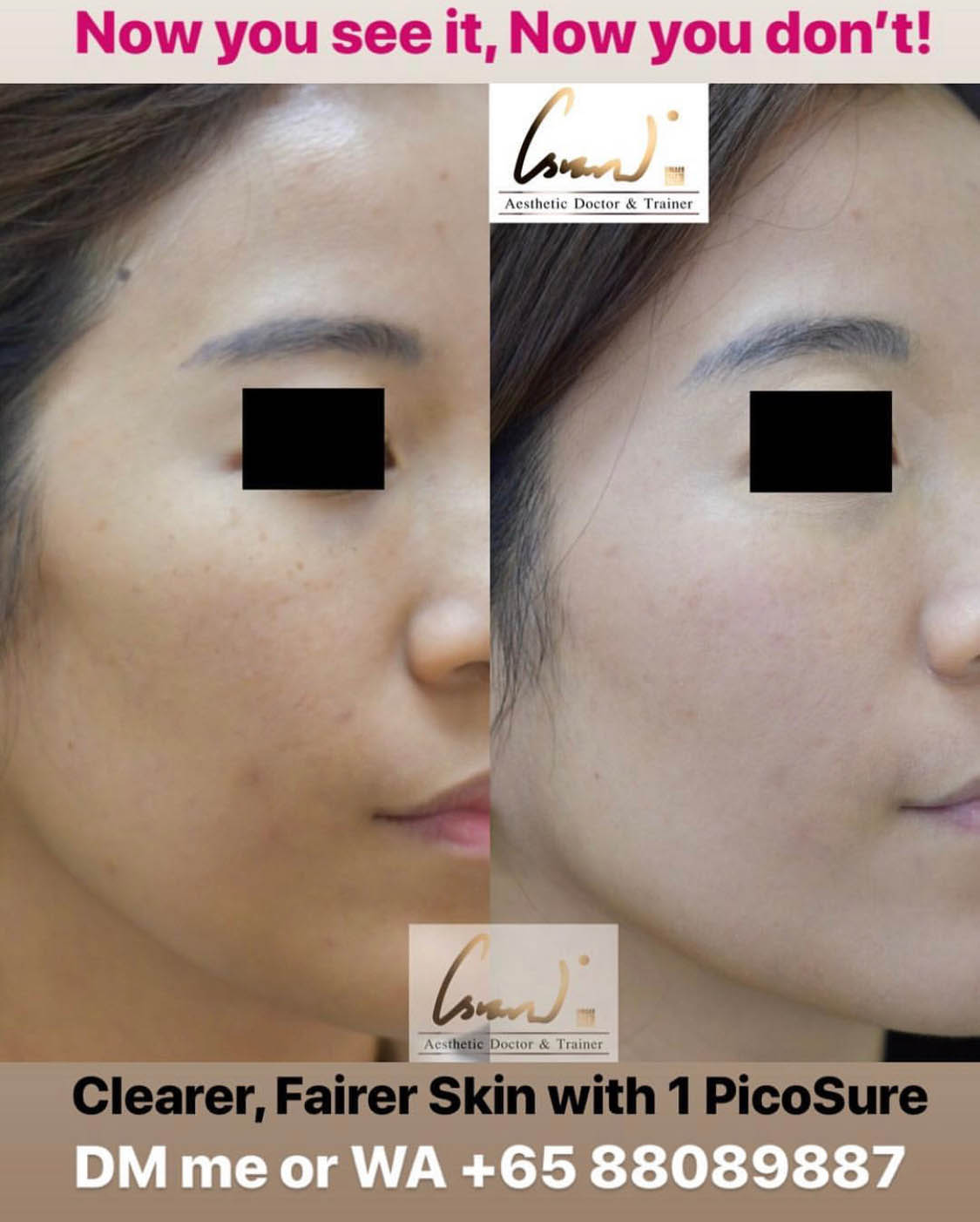 PicoSure Results