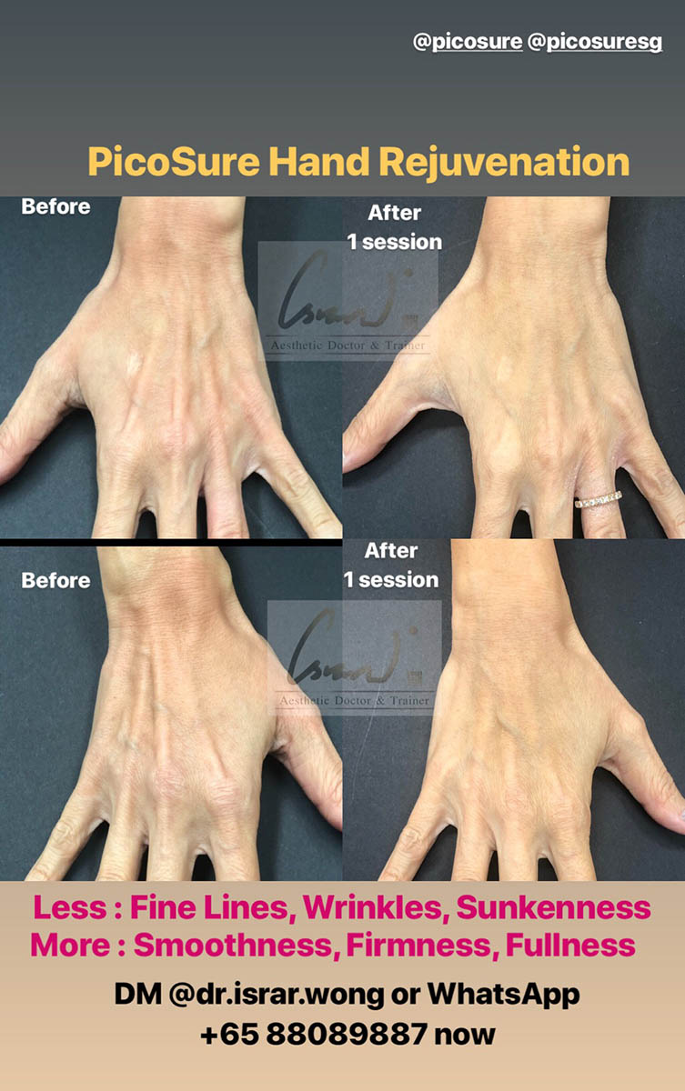 Picosure Hand Rejuvenation