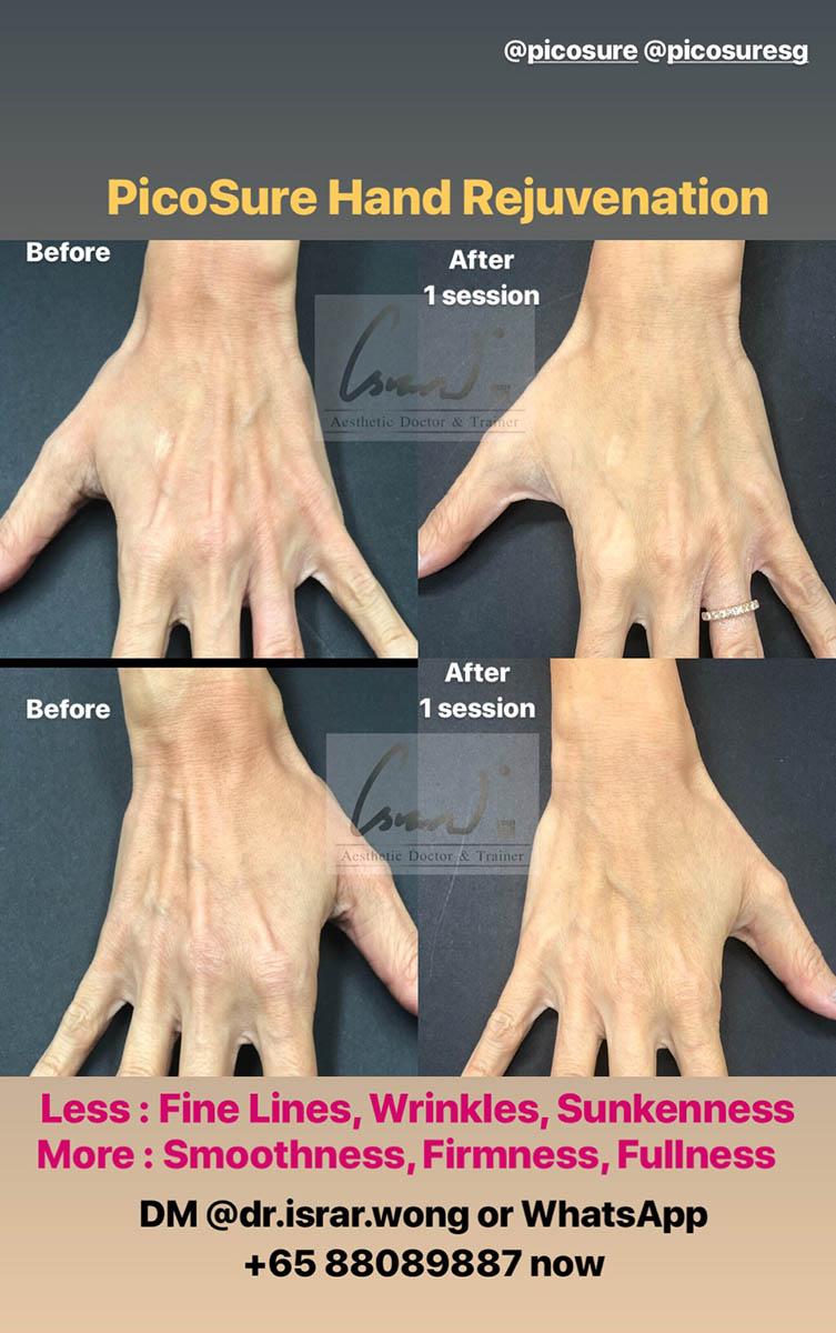 Picosure Hand Rejuvenation