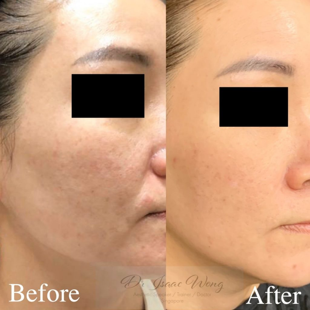 Acne blemishes before and after the Picolaser treatment