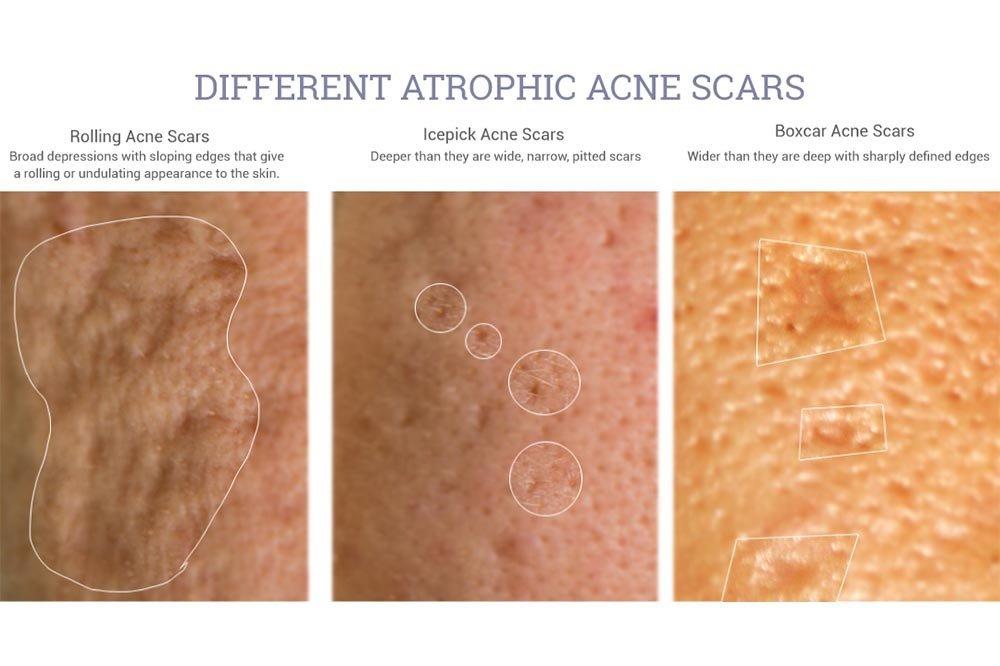 Different Atrophic Acne scars
