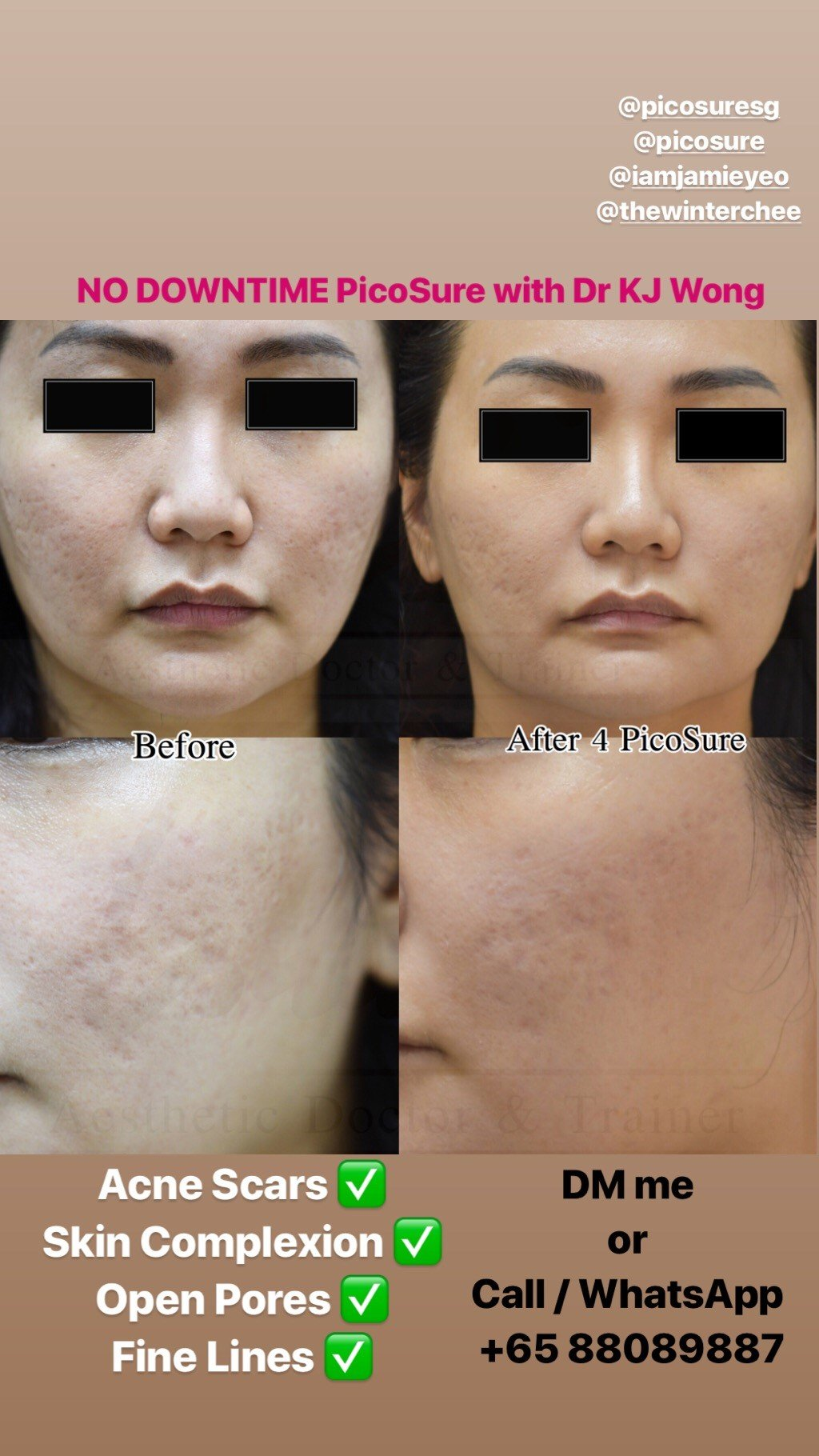 Before/After PicoSure on depressed acne scars