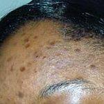 Flat acne scars