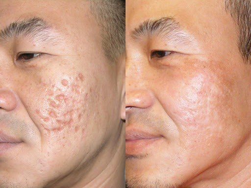 Treatment of boxcar acne scars with subcision and collagen-stimulators