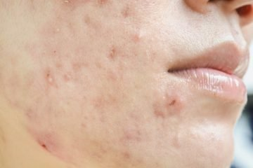 A picture of a lady with acne scars on her cheek