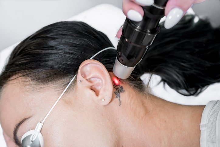 Doctor performing Pico Laser for tattoo removal
