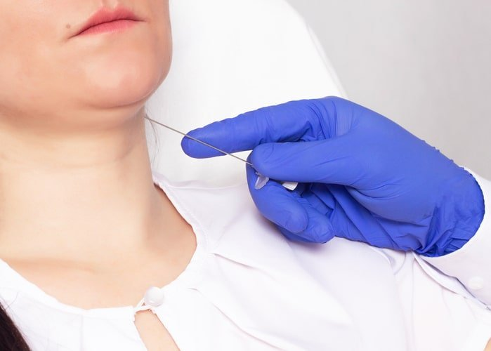 A doctor performing Threadlift on a lady's neck