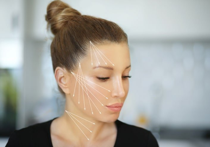 Facial map on where Threadlift can be performed at