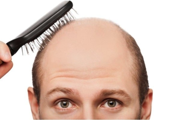 A half bald man trying to comb his hair