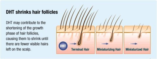 Stages of how DHT shrinks hair follicles