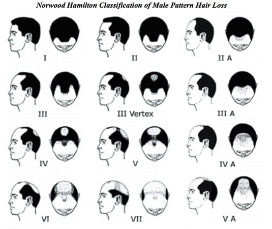 Different hair loss pattern for male