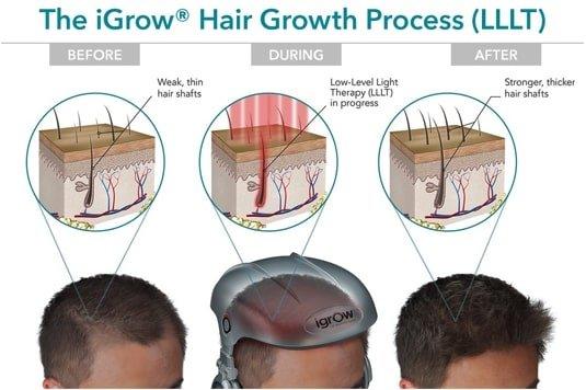 iGrow Hair Growth Process