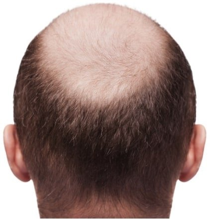 A backview of a man's head who is suffering from hair loss