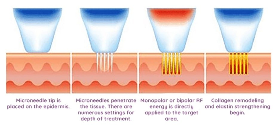 Stages of Microneedle RF (Radiofrequency)