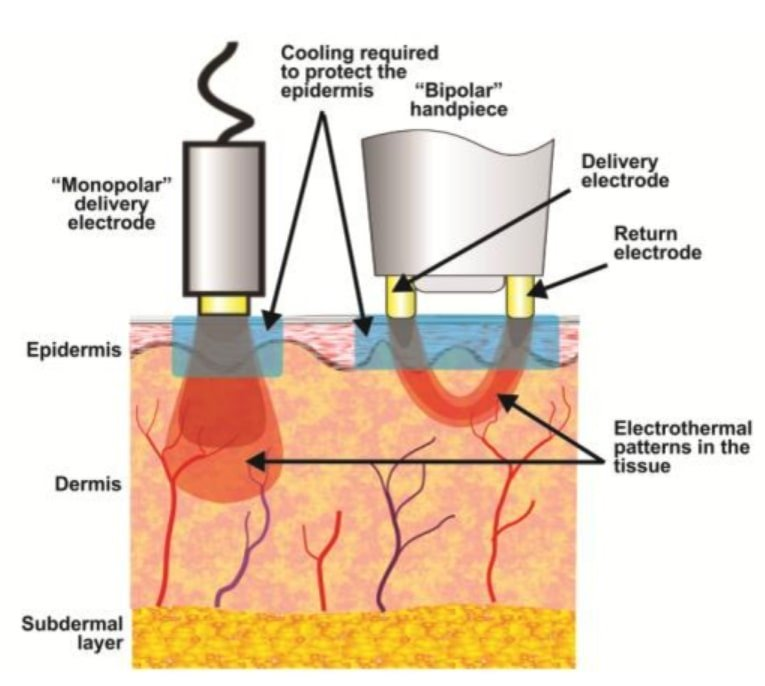 A picture of Monopolar and Bipolar Settings (Deep and Surface Treatments) Both in one treatment